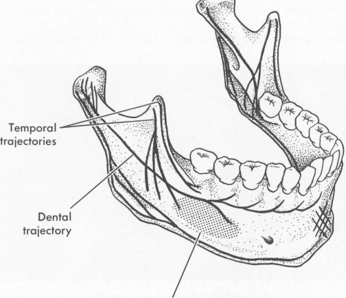 P 41 Endosseous Implant Considerations In Trajectories Of Lower Jaw